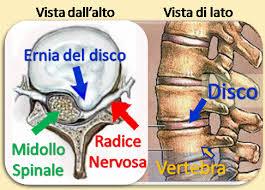 La spina dorsale osteochondrosis linvalidità è data