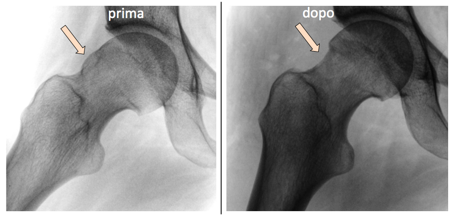 Osteopatia Collo Femore