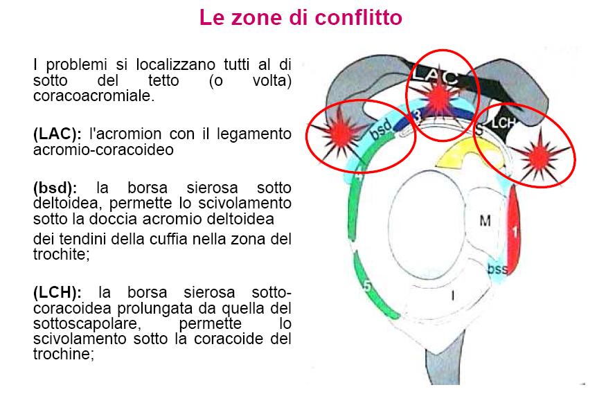 Zone Conflitto Spalla