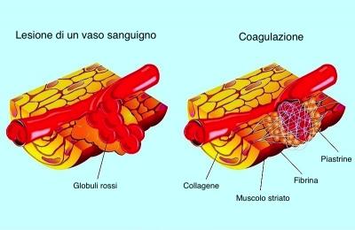 processo guarigione lesione muscolare