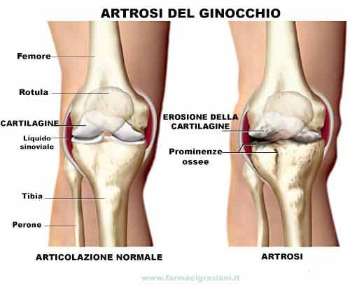 artrosi.ginocchio-web