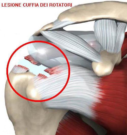 lesione cuffia rotatori
