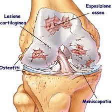 lesioni cartilagine-ginocchio