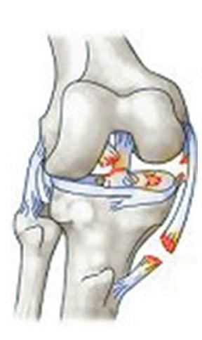 lesioni legamentose