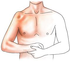 lussazione spalla clinica