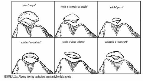 variazionianatomiche iperpress rotulea